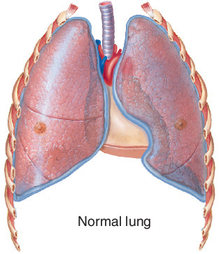 medical terms for lung areas